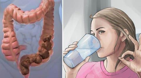 Quand surpoids ou obésité rime avec fuites urinaires