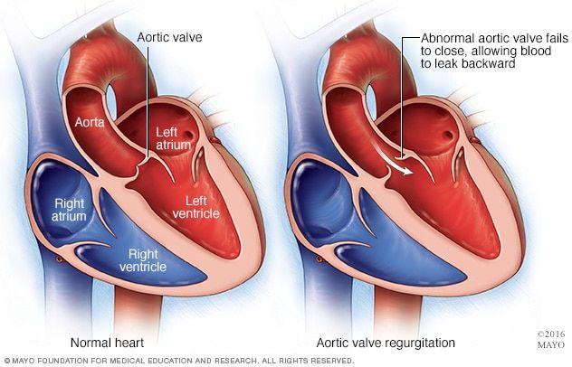 La perte de poids aidera-t-elle la sténose aortique sous-vêtements minceur corps cible