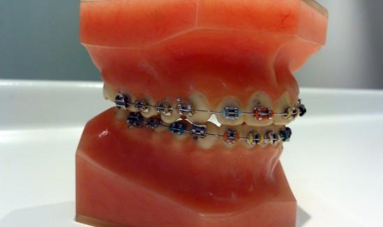 orthodontie de perte de poids