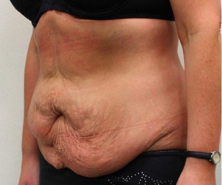 Faut-il faire un régime avant ou après une liposuccion ?