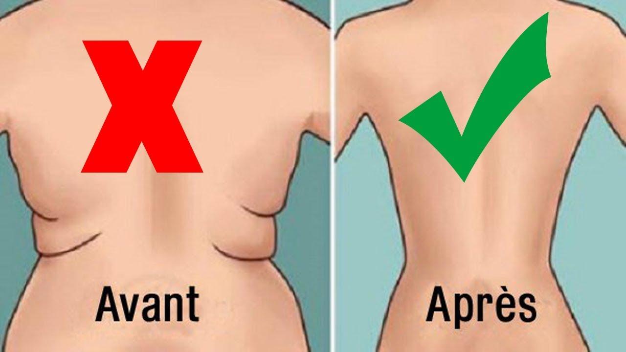 Maigrir du dos: comment perdre cette graisse du dos? | VieHealthy