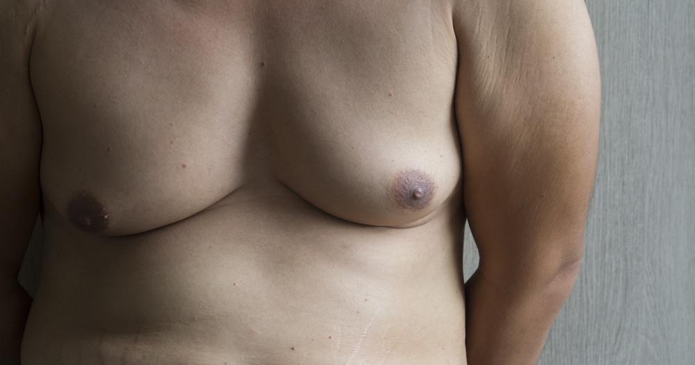 L'opération de la gynécomastie : le traitement de l'hypertrophie de la poitrine chez l'homme
