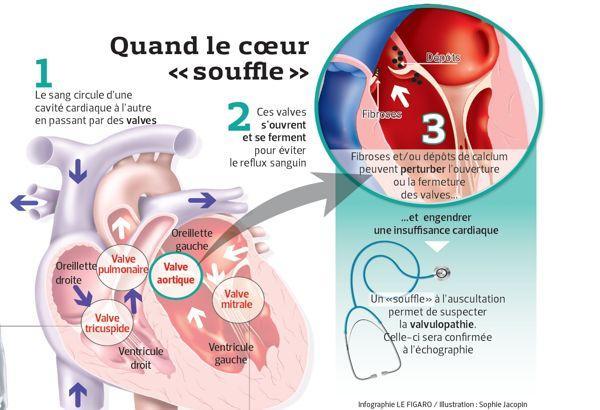 Le retour à domicile après une chirurgie cardiaque | Louvain Médical