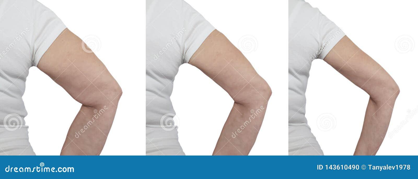 Comment maigrir des bras pour une femme ? - CalculerSonIMC