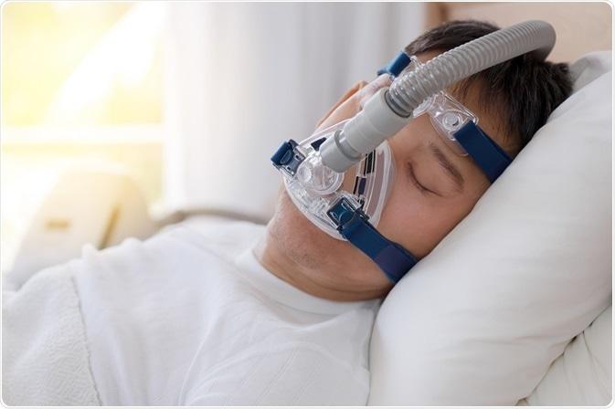 Apnées du sommeil : la perte de poids, c'est la clé ! | PassionSanté.be