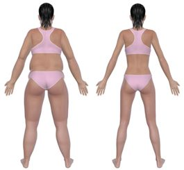 quelles maladies provoquent une perte de poids inexpliquée avant et après la perte de poids clipart