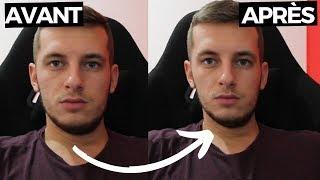 Les transformations montrent ce que la perte de poids fait au visage – Minceur Pro
