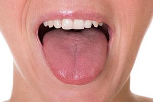 Langue blanche ou saburrale: signification, causes et 10 traitement