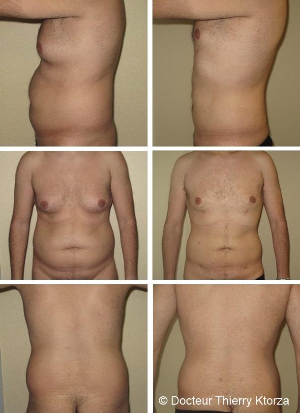 la taille du soutien-gorge diminue la perte de poids mega fat burner femme avis