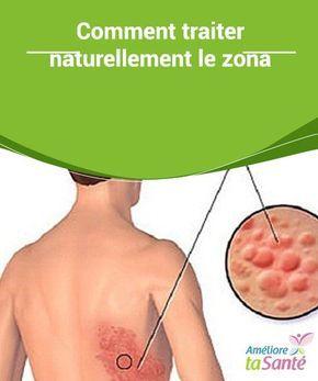 Zona - Causes, Symptômes, Traitement, Diagnostic - gestinfo.fr