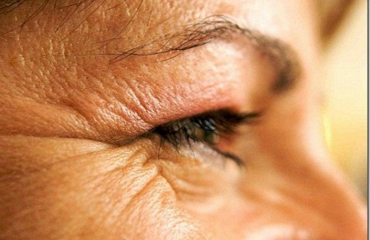 rides des yeux après une perte de poids meilleurs suppléments de combustion des graisses sans danger