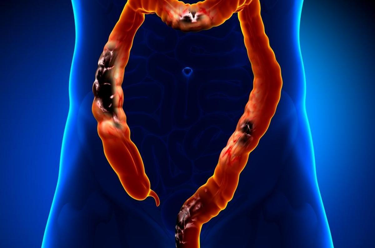 changement des habitudes intestinales perte de poids fatigue