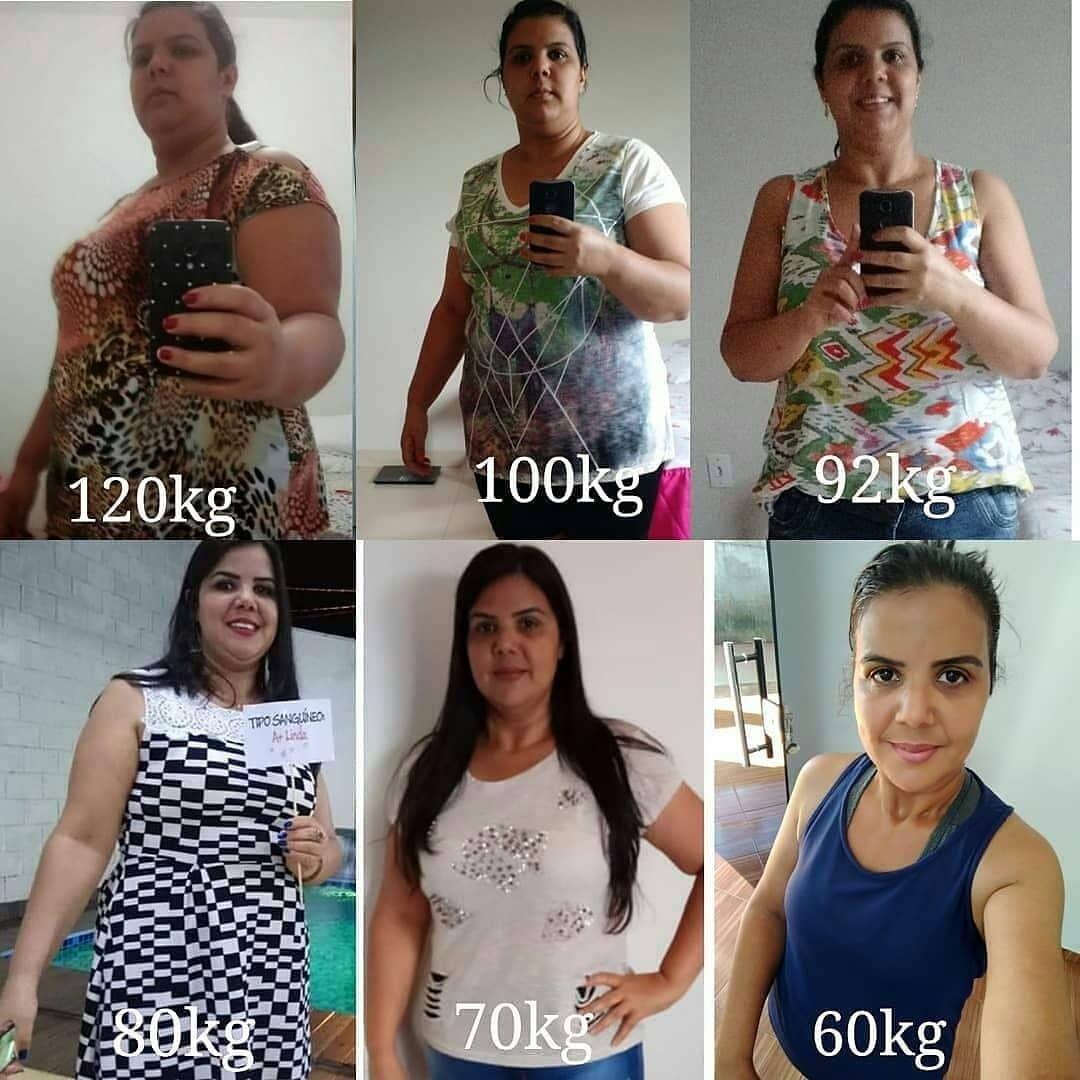 vsg perte de poids 2 mois