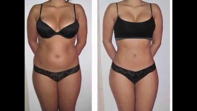 perte de poids après lipo
