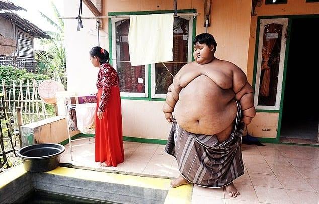 Indonésie: Arya Permana, l'enfant le plus gros du monde, opéré avec succès (vidéo) – Barlamane