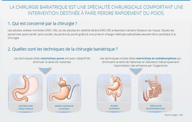 Variations pondérales et hyperthyroïdie : quels enjeux ? - Revue Médicale Suisse