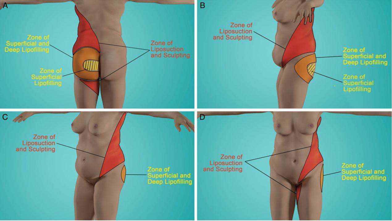 seins affaissés en raison de la perte de poids smoothie vitamix pour perdre du poids