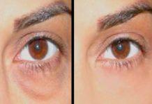 Poches sous les yeux : traitement sans chirurgie - CSHP