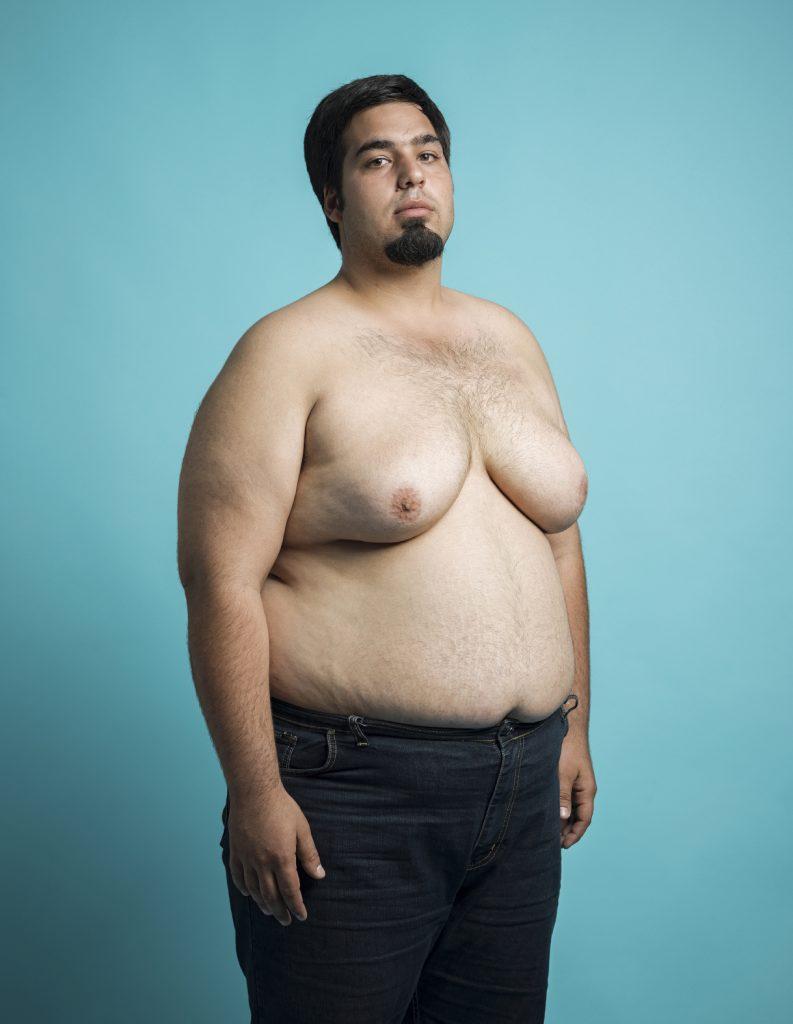 comment perdre de la graisse de la poitrine latérale