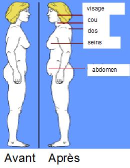 perdre du poids avant la rhinoplastie