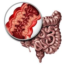 maladie inflammatoire de lintestin pas de perte de poids