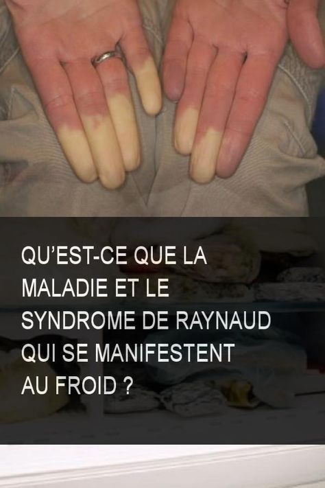 perdre du poids malade froid